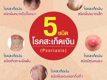 5ชนิดโรคสะเก็ดเงิน